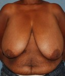 Before breast reduction: case #1