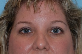 After browlift: case #2