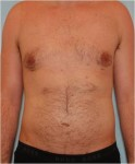 After male breast reduction: case #1
