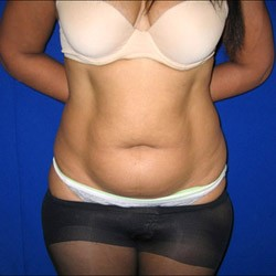 Before liposuction, tummy area: case #2