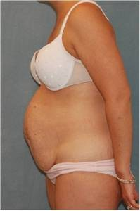 Before tummy tuck: case #1
