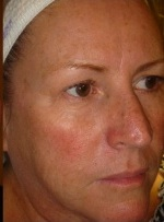After DermaSweep procedure