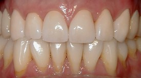 After porcelain crowns