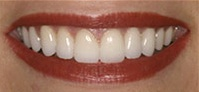 After porcelain veneer procedure