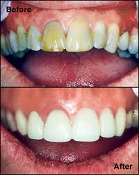 Before and after CEREC veneers