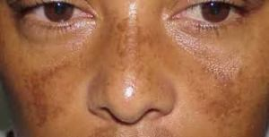 "The hazy ""mask"" of melasma"