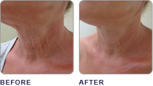 clearlift_before_after_01