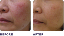 clearlift_before_after_02